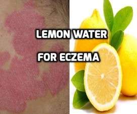 Lemon water for Eczema