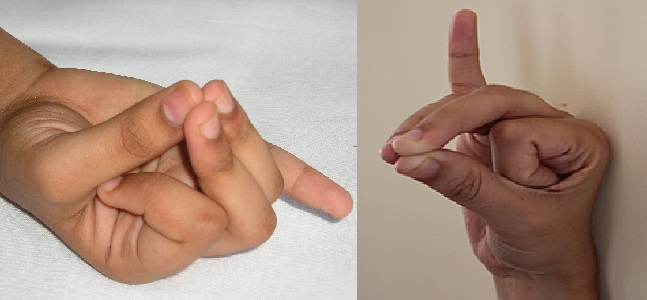 Apana Vayu mudra is a hasta mudra for high blood pressure