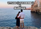 Vitiligo Leucoderma Marriage Matrimony