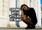 Vitiligo Stigma Discrimination Problems
