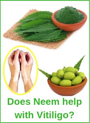 Neem Vitiligo Leucoderma herbal treatment