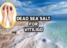 Dead Sea salt vitiligo leucoderma treatment