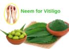 Neem leaves oil tablets Vitiligo leucoderma