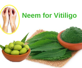 Neem leaves oil tablets Vitiligo leucoderma