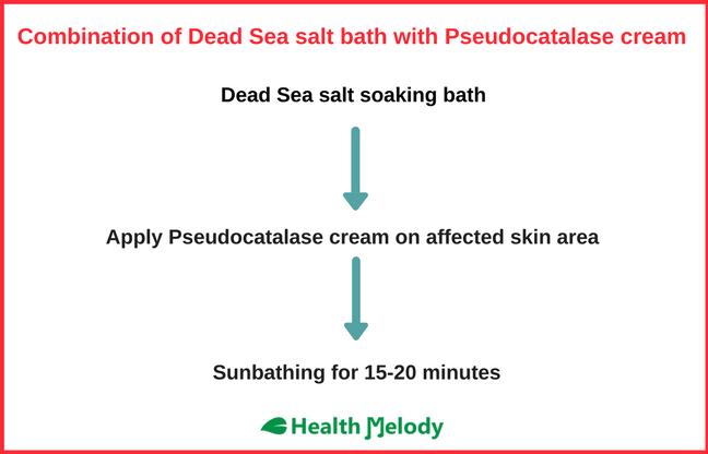 Pseudocatalase cream Dead Sea salt Vitiligo