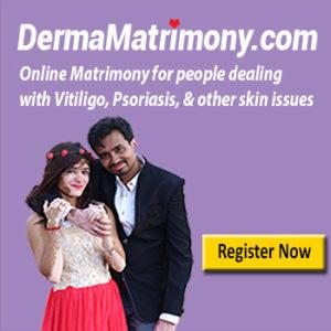 Vitiligo Leucoderma Matrimony Marriage Bureau