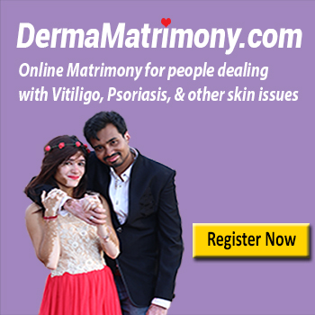 Vitiligo Leucoderma Matrimony Marriage Bureau