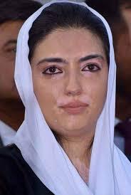 Asifa Bhutto Face Vitiligo