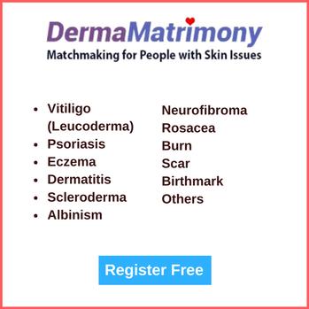 Vitiligo Leucoderma Match Dating website