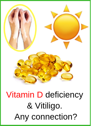 Vitamin D Vitiligo Sunlight
