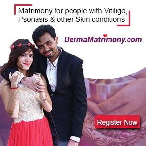 Vitiligo leucoderma matrimony marriage brides grooms