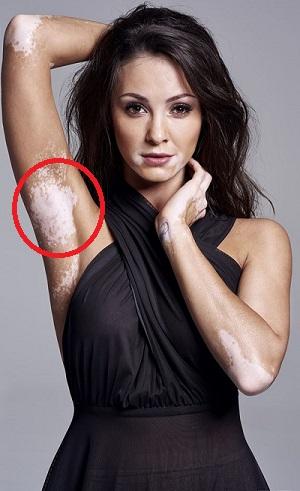 Széles Adrienn Vitiligo Underarms Armpits