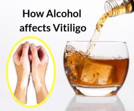 Vitiligo Alcohol