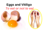 Vitiligo Leucoderma Eggs Animal protein